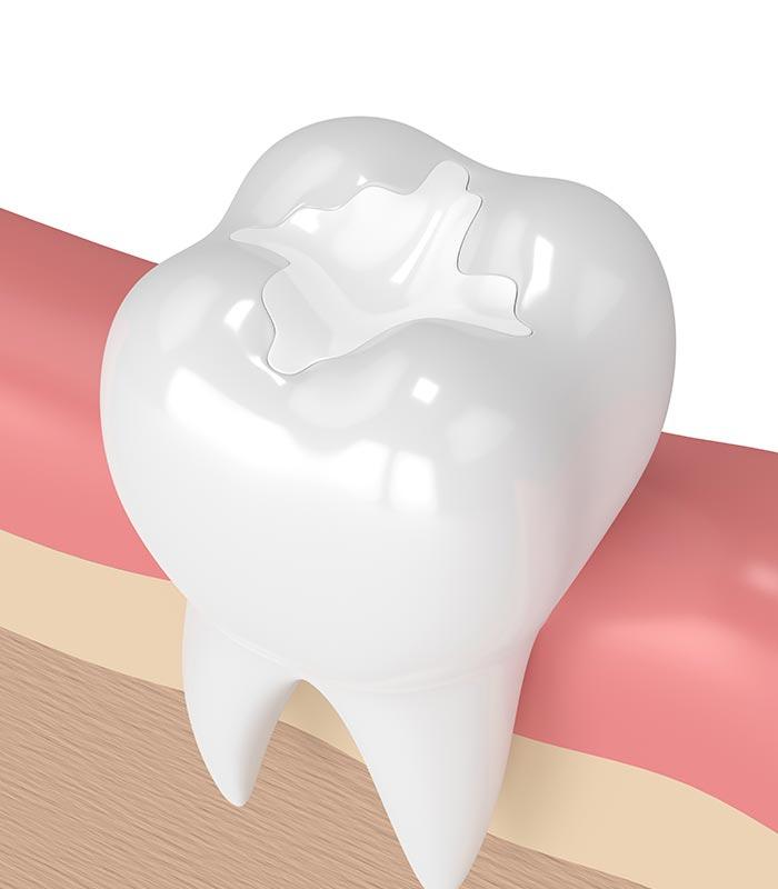 Tooth-filling-Mornington