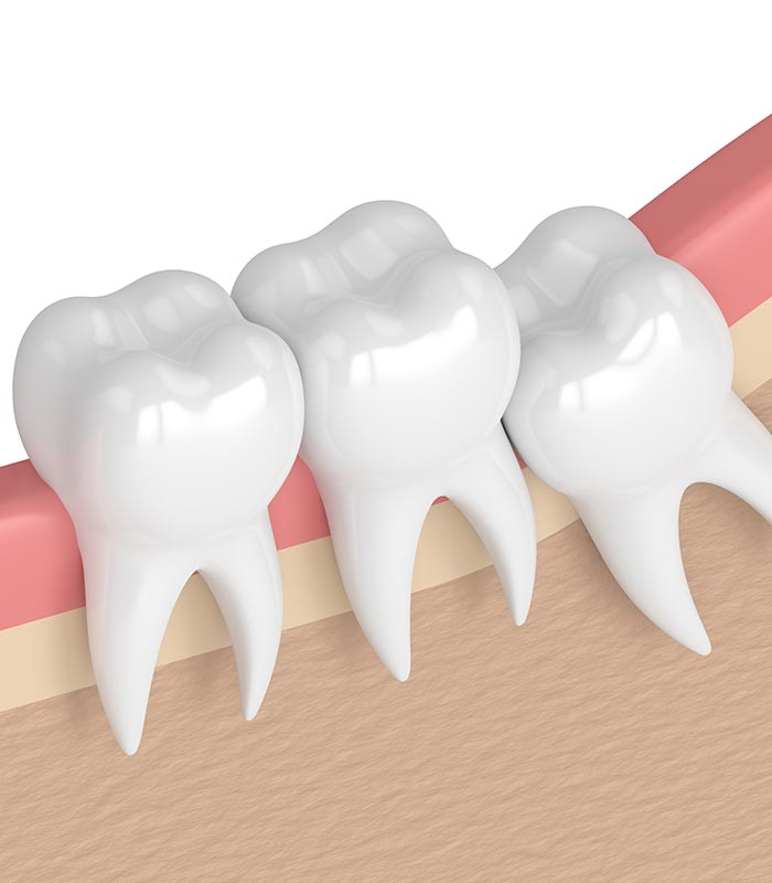 wisdom-tooth-removal-Mornington